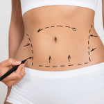 Fat Reduction & Body Contouring Condition