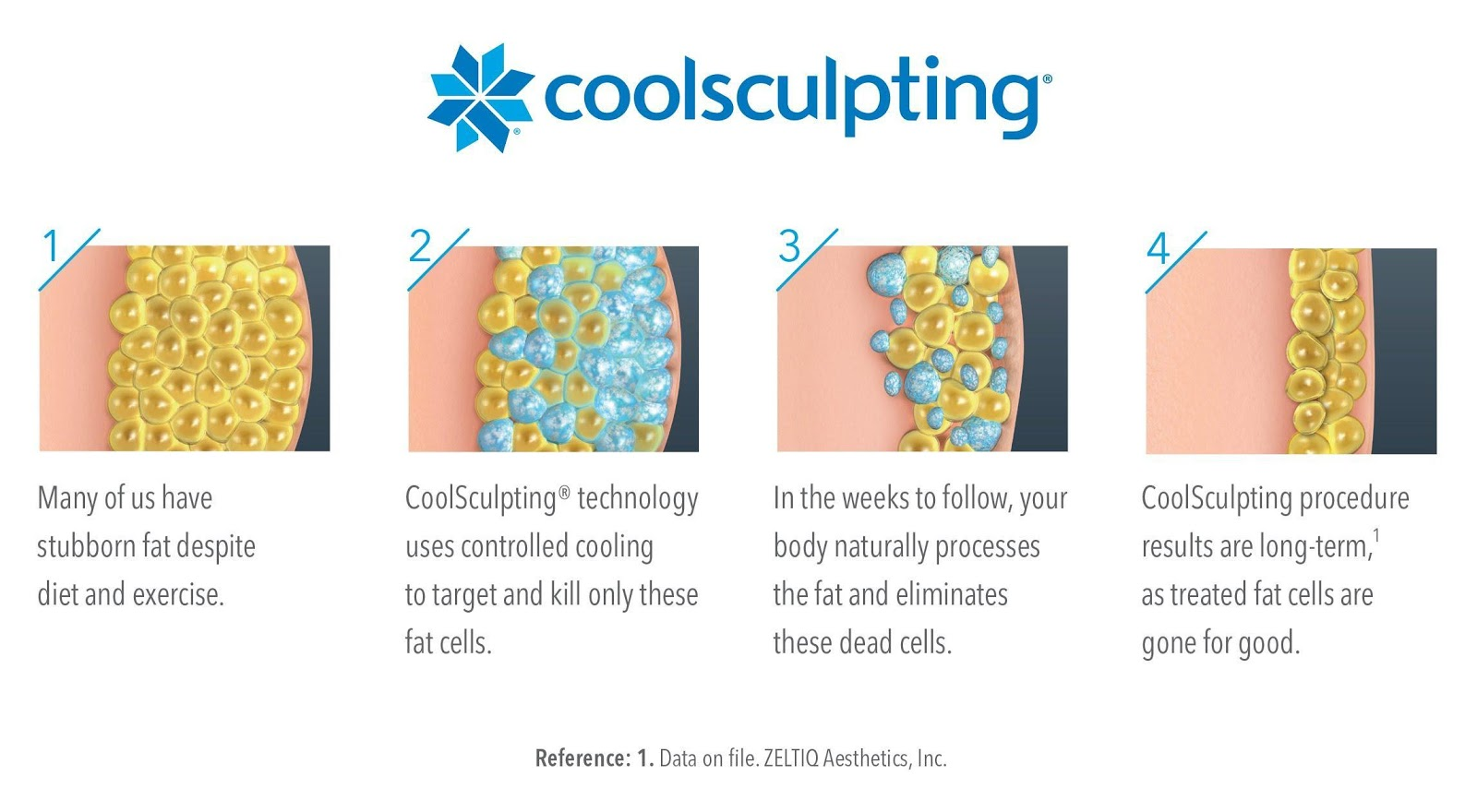 how does coolsculpting work