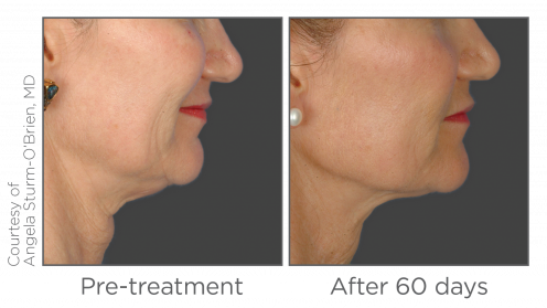 Ultherapy® Skin Tightening: Treatment in Ottawa - Concept
